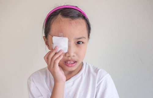 Medical school blog on sports-related eye injuries